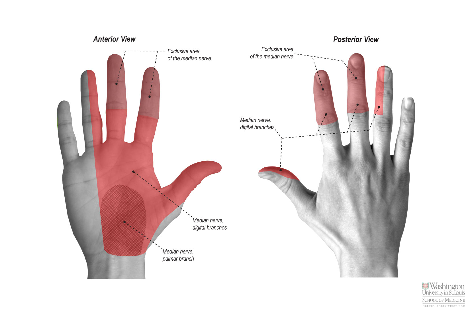 Proper Palmar Digital Nerves