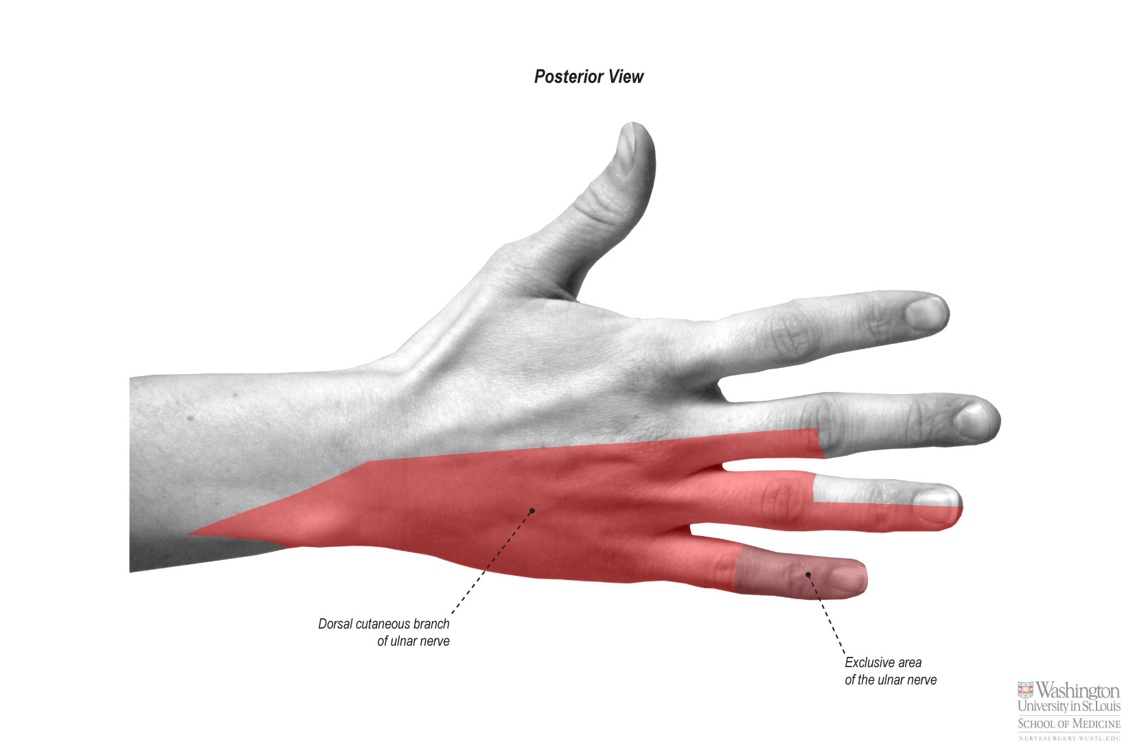 Common Palmar Digital Nerve