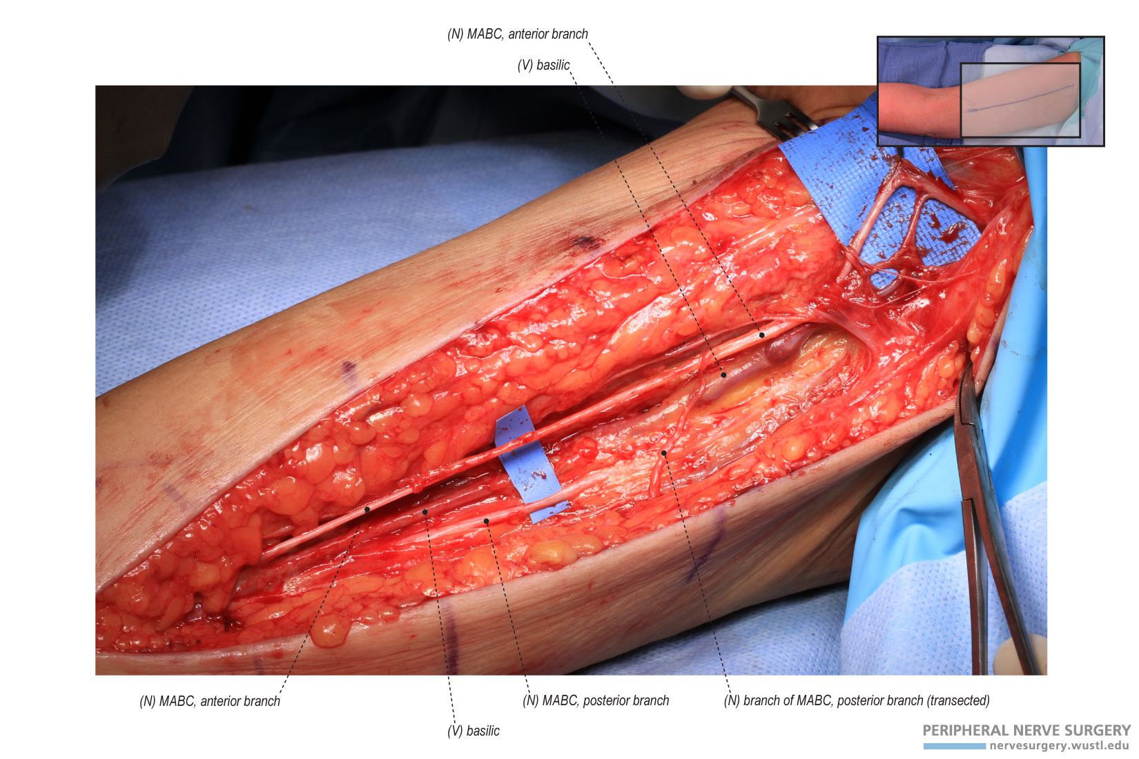 femoral nerve graft – applecool, Muscles